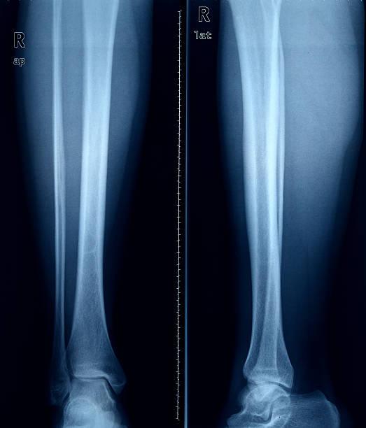 imagerie par rayons x des pieds. - mi jambe photos et images de collection