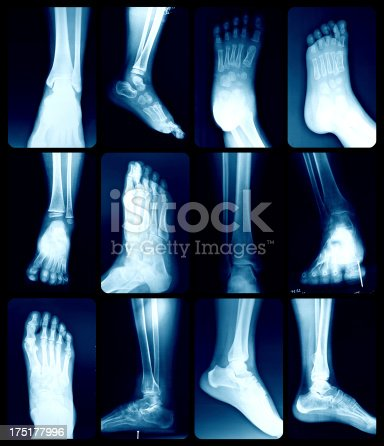 istock X-Ray image of the Foot. 175177996