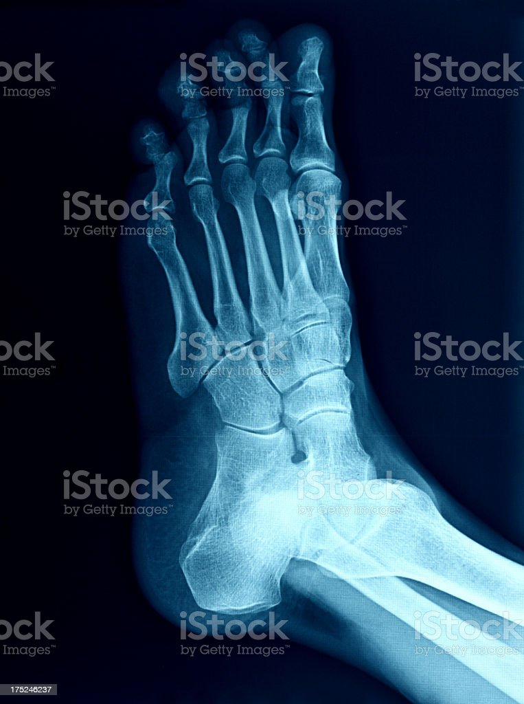 Xray Image Of The Foot Stock Photo Download Image Now Istock