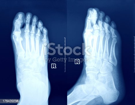 istock X-Ray image of the Foot. 175420238