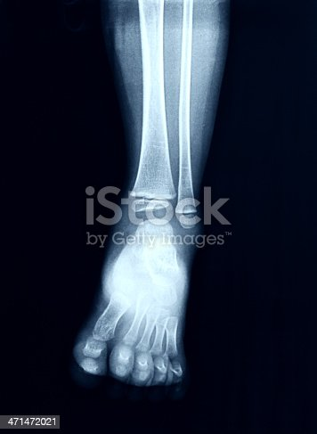 istock X-Ray image of the Foot. 471472021