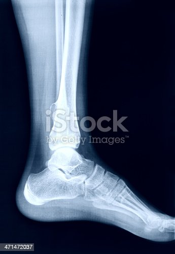 istock X-Ray image of the Foot 471472037