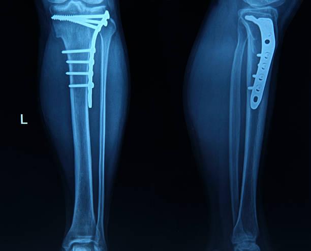 imagerie par rayons x des pieds - mi jambe photos et images de collection