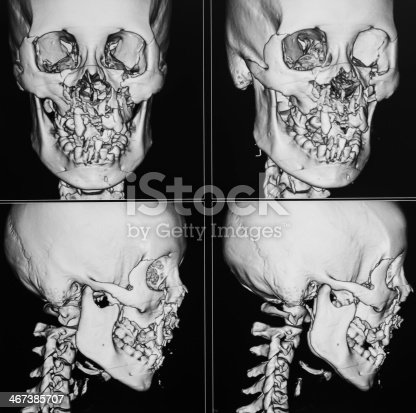 183306794istockphoto X-ray image of the skull computed tomography 3D, fracture maxilla 467385707