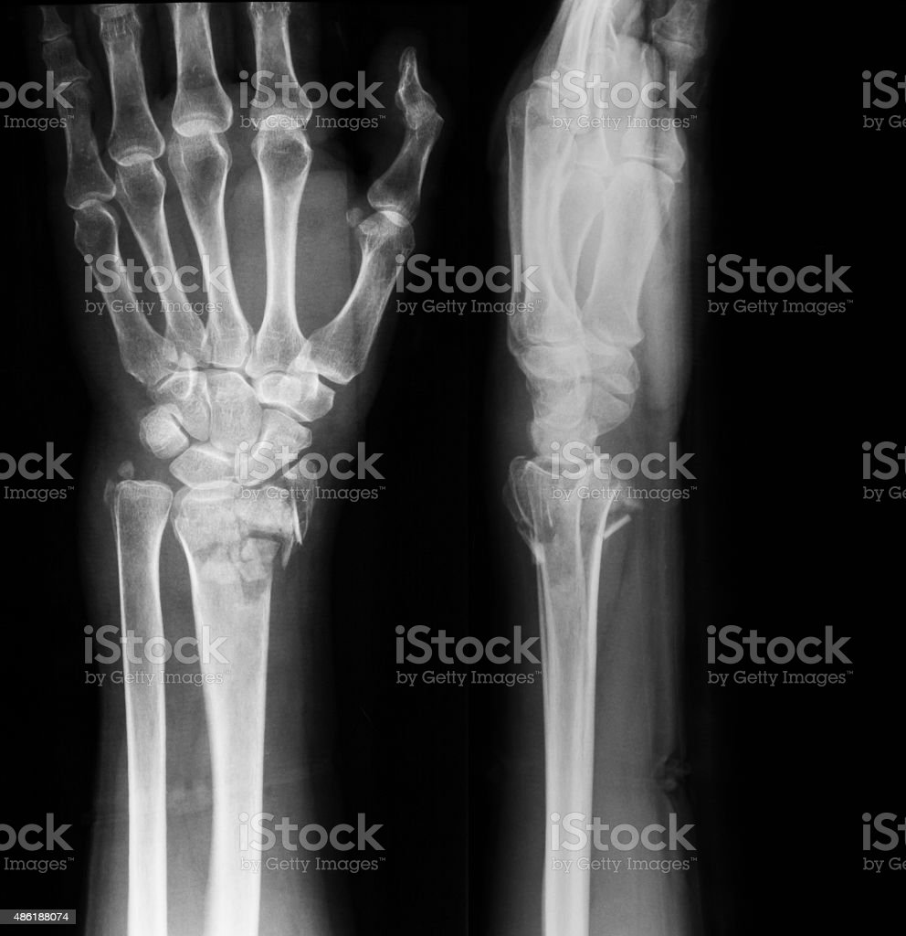 Xray Image Of Wrist Joint Ap And Lateral View Stock Photo & More ...