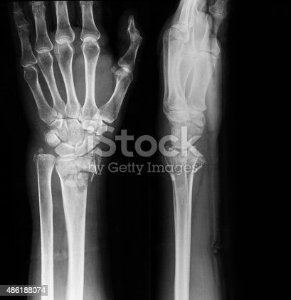 Xray Image Of Wrist Joint Ap And Lateral View stock photo ...