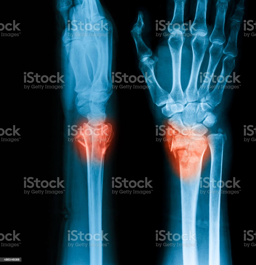 X-ray image of wrist joint, AP and lateral view. stock photo
