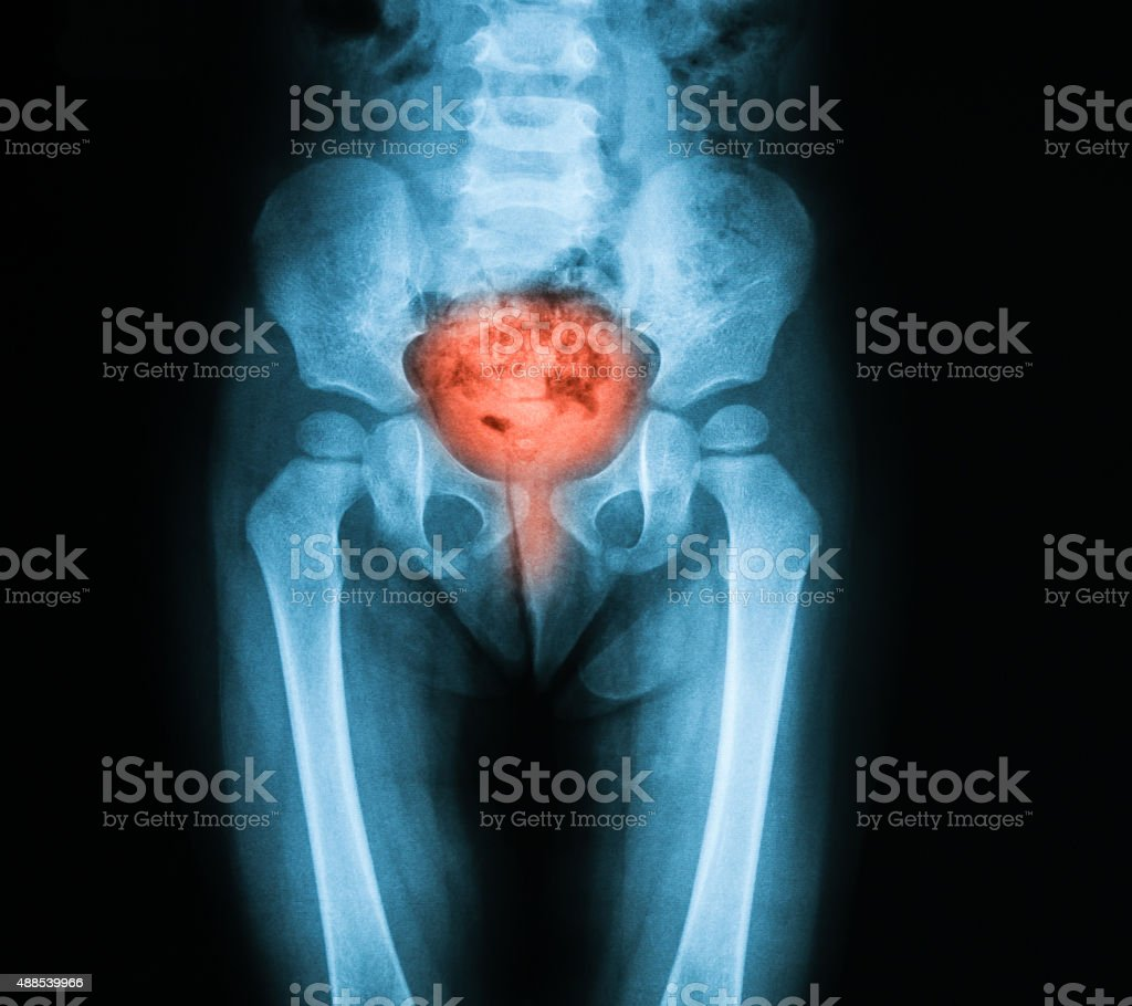 X-ray image pelvic, AP view. stock photo