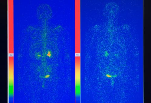 istock X-ray image 95703553