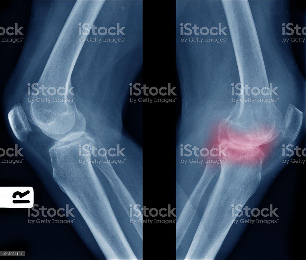 Röntgenbild Vergleich Der älteren Normalen Knie Auf Der Linke Seite ...