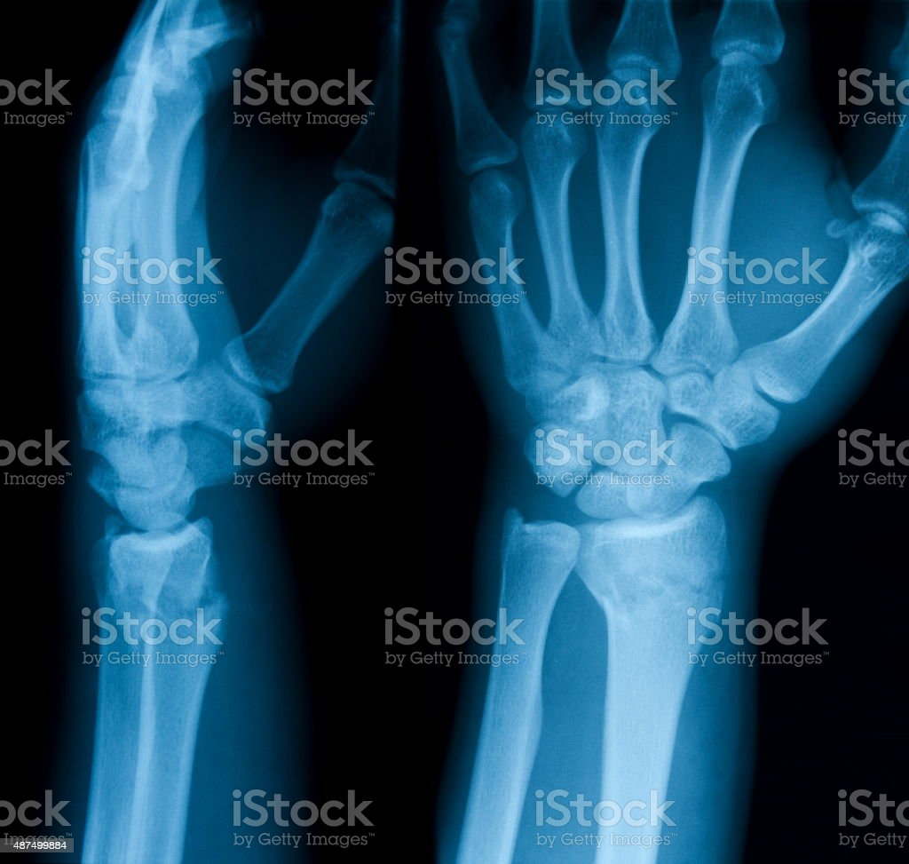X-ray image showing distal radius fracture. stock photo