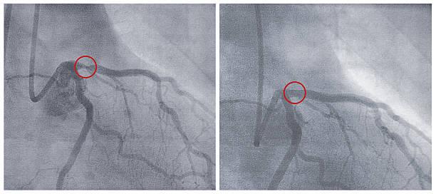 X-ray Bilder vor und nach dem balloon Dilatation – Foto