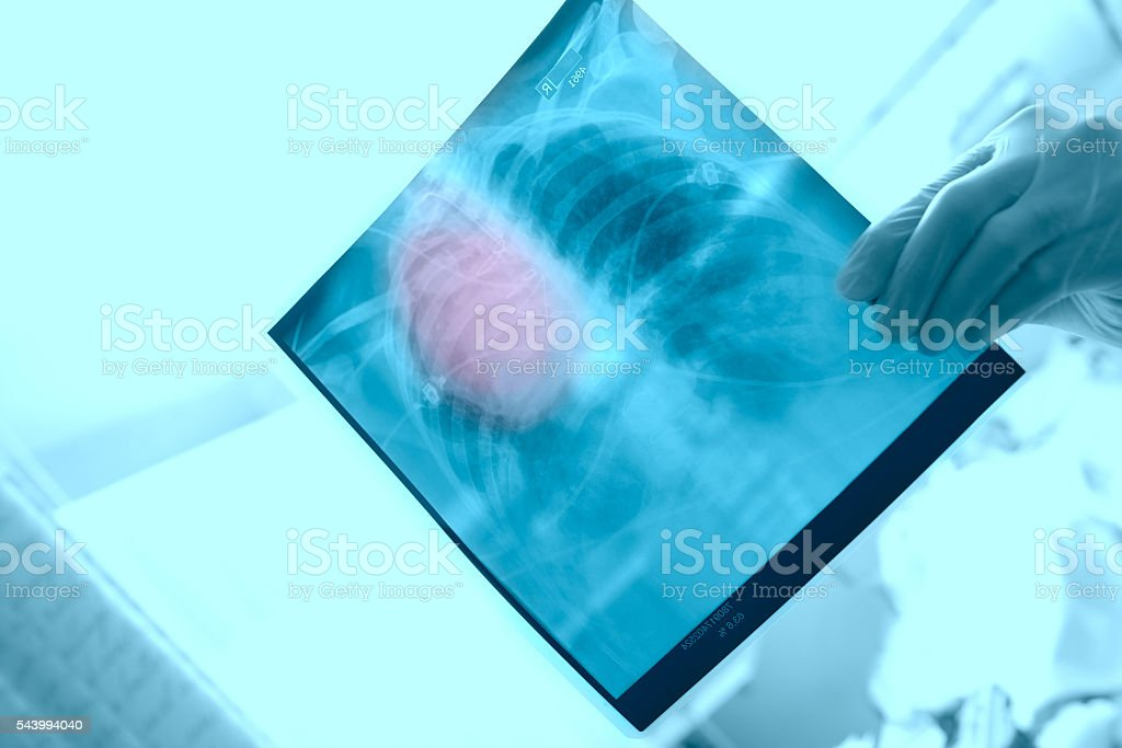 X-ray in the hands of a surgeon stock photo