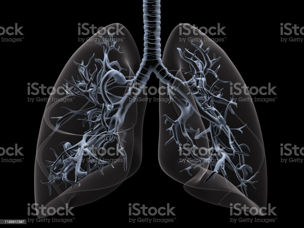 X-ray lungs stock photo