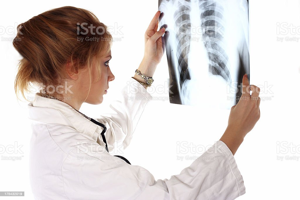 X-Ray Lungs royalty-free stock photo