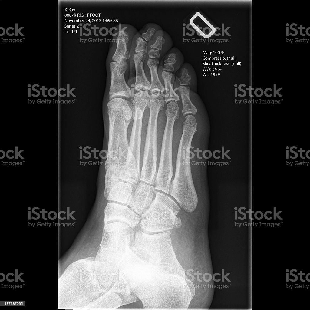 X-ray man's right foot - oblique view royalty-free stock photo