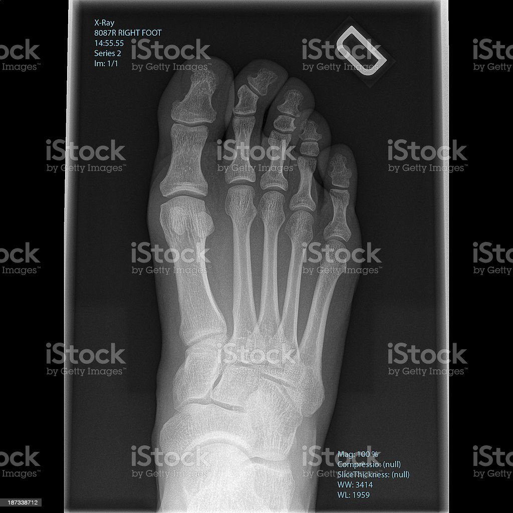 Xray Mans Right Foot Top View Stock Photo & More Pictures of Anatomy ...