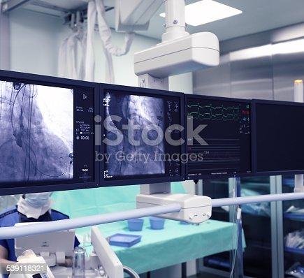 istock X-ray monitors 539118321