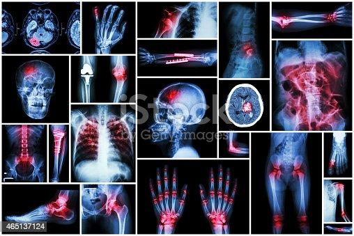 istock X-ray multiple disease 465137124