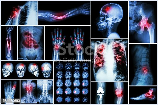 istock X-ray multiple disease 534470693