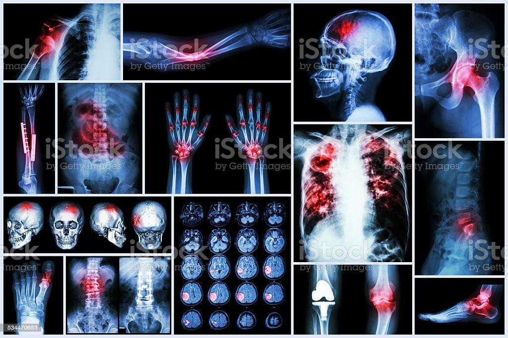 X-ray multiple disease stock photo