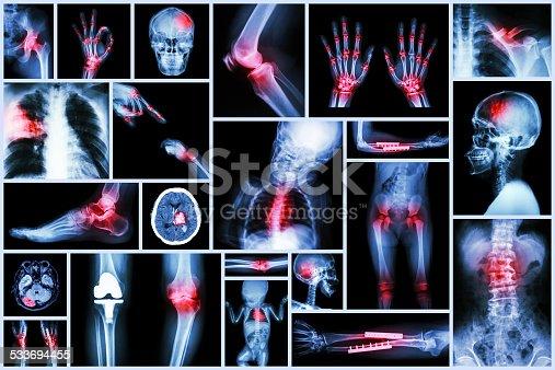 istock X-ray multiple human's organ & orthopedic surgery & Multiple disease 533694455
