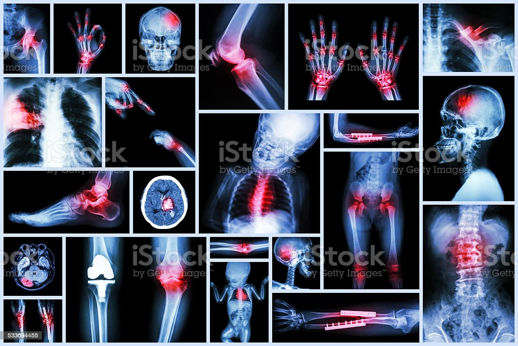 X-ray multiple human's organ & orthopedic surgery & Multiple disease stock photo