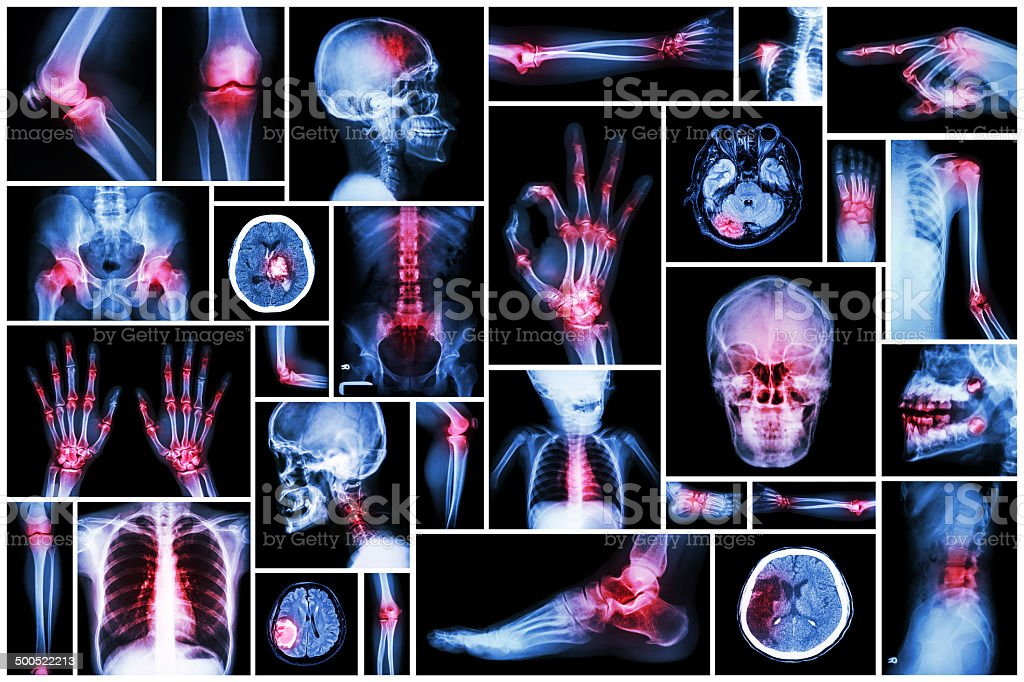 X-ray multiple part of human with multiple disease stock photo