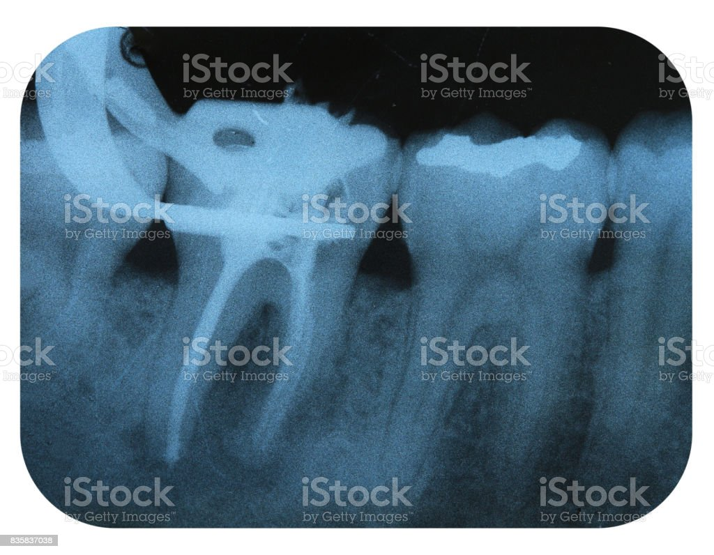X-Ray Negative Tooth Endodontic stock photo