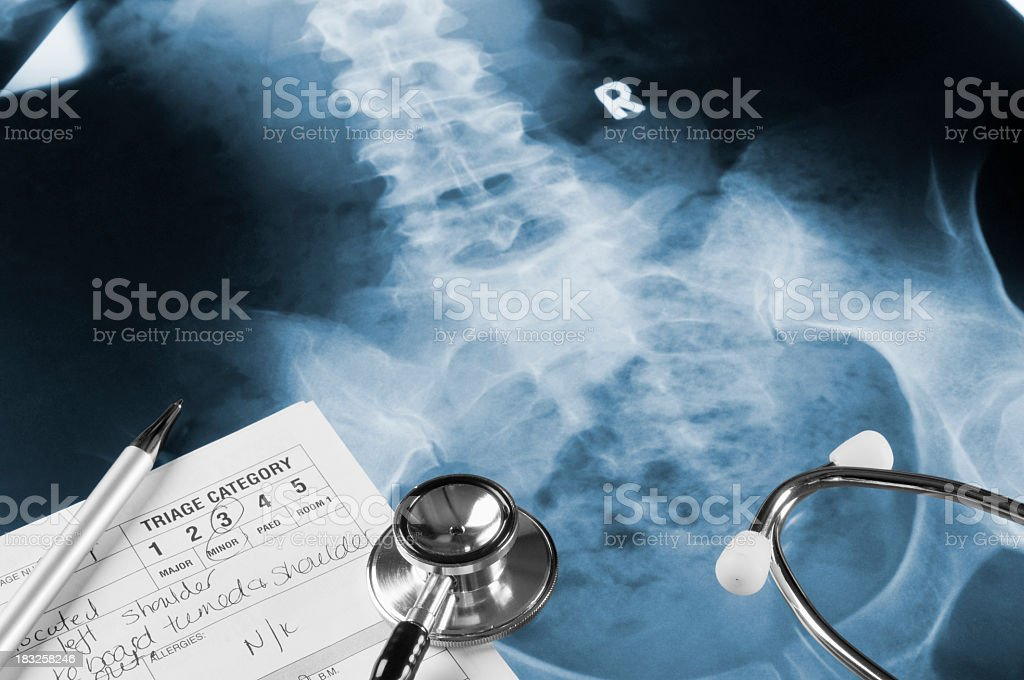 X-Ray negatives under a stethoscope, notes and pen stock photo