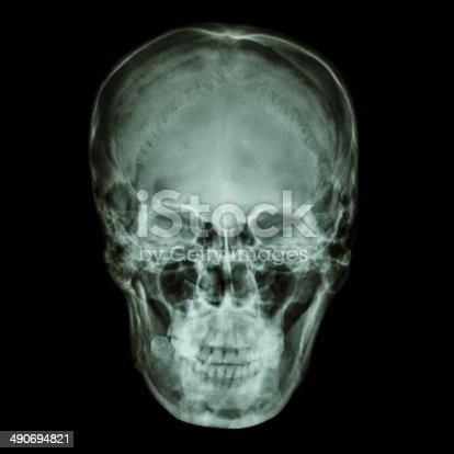 istock X-ray normal asian skull (Thai people) 490694821