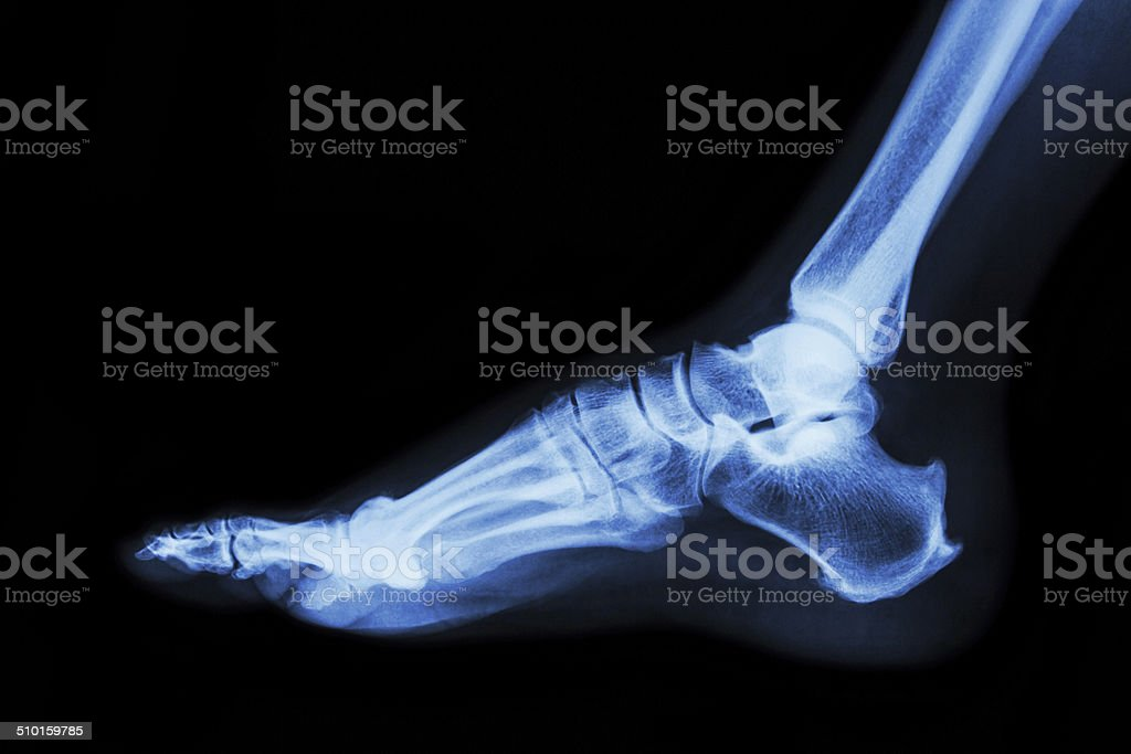 Xray Normal Foot Lateral Stock Photo Download Image Now Istock