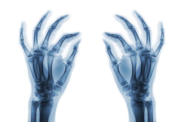 x-ray normale menschliche hände auf weißem hintergrund. schrägansicht - skelett hand stock-fotos und bilder