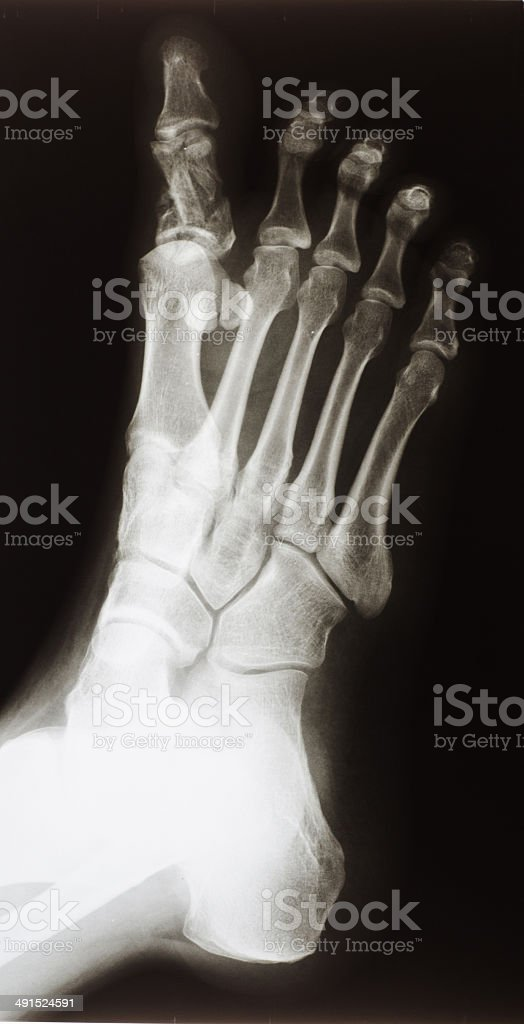 Xray Of A Broken Big Toe Stock Photo & More Pictures of Anatomy | iStock