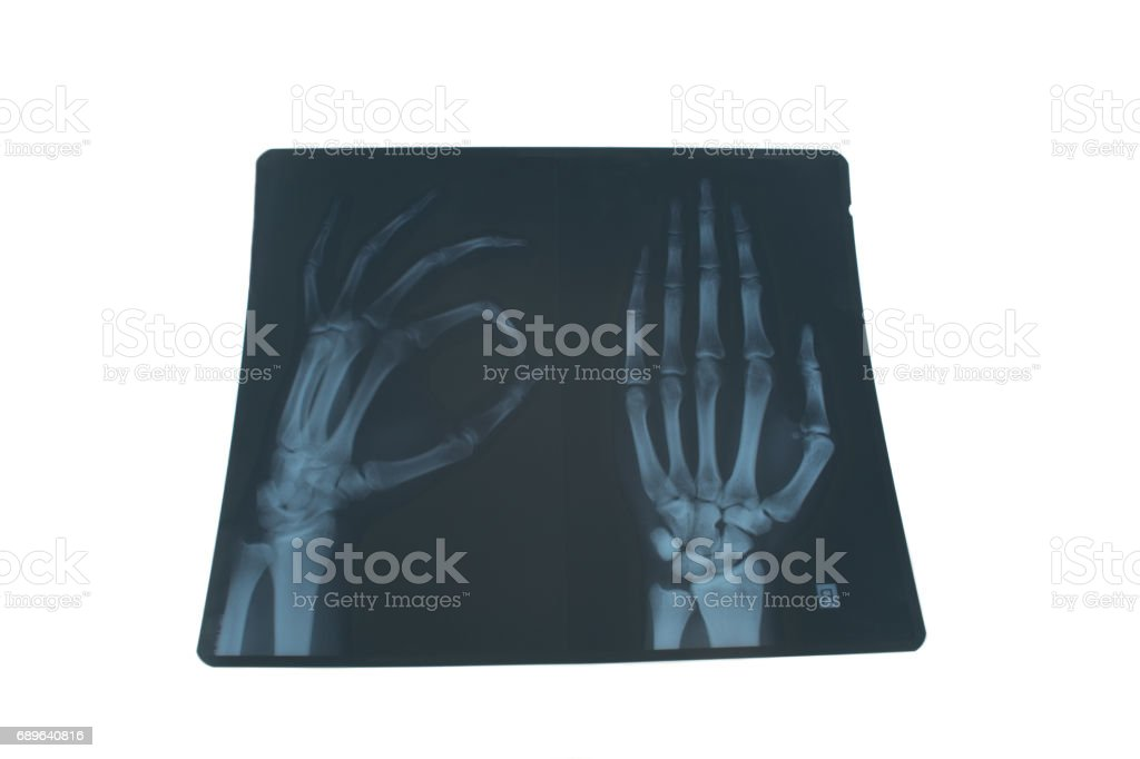 X-ray of a hand stock photo