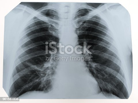 836113342 istock photo X-ray of a human chest or lungs radiography shot, medical technology and roentgen clinic diagnostic concept 961581836