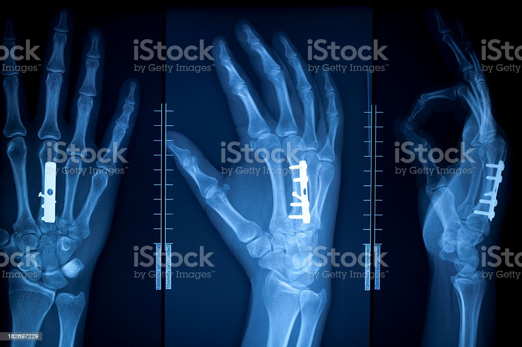 X-ray of a human hand with pins in it stock photo