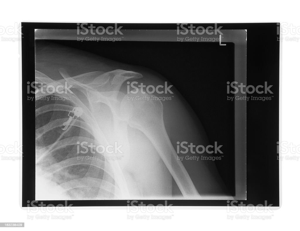 Xray of a human shoulder on doctors lightbox royalty-free stock photo