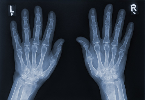 X-ray image of the hands of a senior woman with Osteoarthritis. Human skeleton.