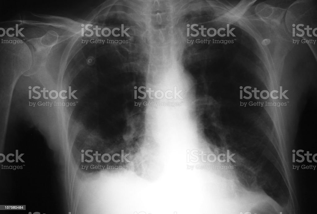 X-ray of a lung that have Bronchitis stock photo