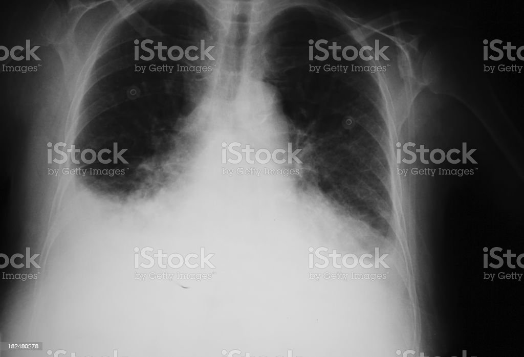 X-ray of a lung that have pulmonary edema  XXL stock photo