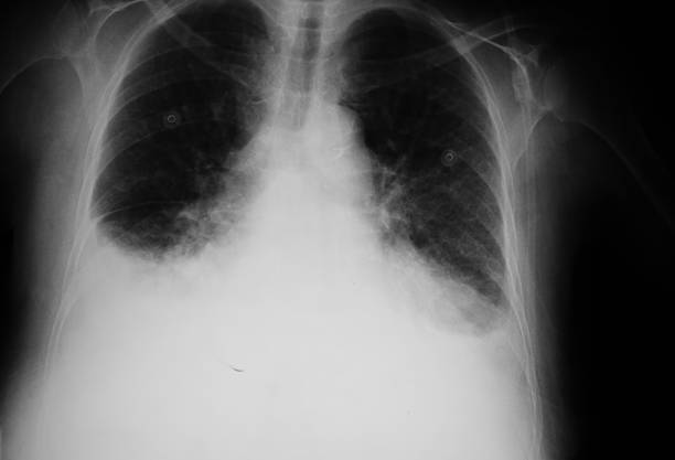 X-ray of a lung that have pulmonary edema  XXL X-ray of a lung that have pulmonary edemaBW image intercostal space stock pictures, royalty-free photos & images