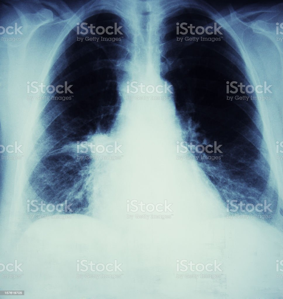 x-ray of a lunge Cancer and flu stock photo