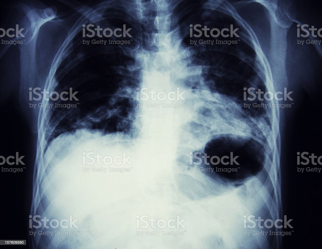x-ray of a lunge Cancer royalty-free stock photo