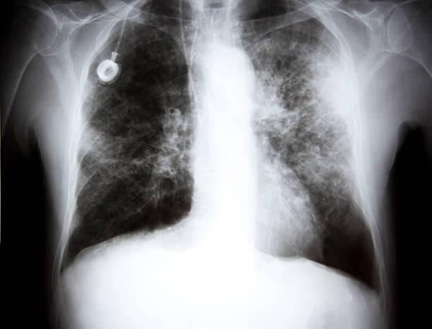 raggi x di un affondo cancro xxl - febbre russa foto e immagini stock