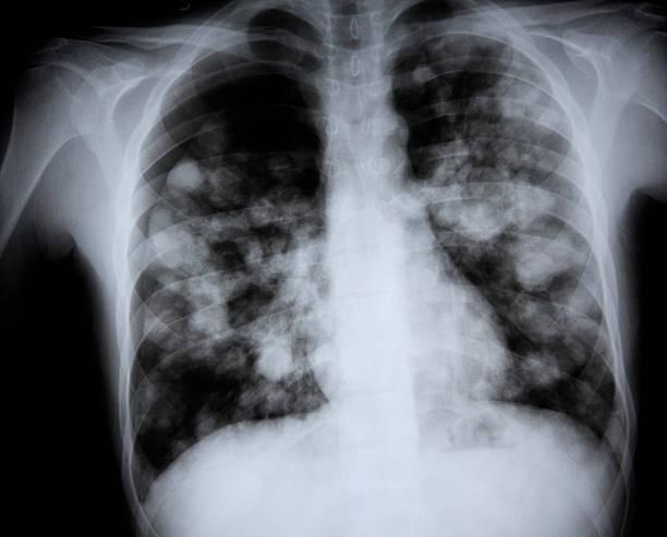 x-ray d'une fente soupçonnées h7n9 grippe des oiseaux - sternum photos et images de collection