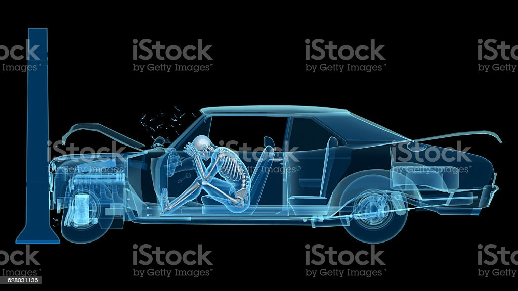 Anatomy Diagram After Car Crash Car - ~ Wiring Diagram Portal ~ •