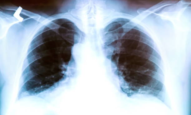 X-ray of a patient's lungs with pronounced traces of the inflammatory process . X-ray of a patient's lungs with pronounced traces of the inflammatory process . irradiation stock pictures, royalty-free photos & images