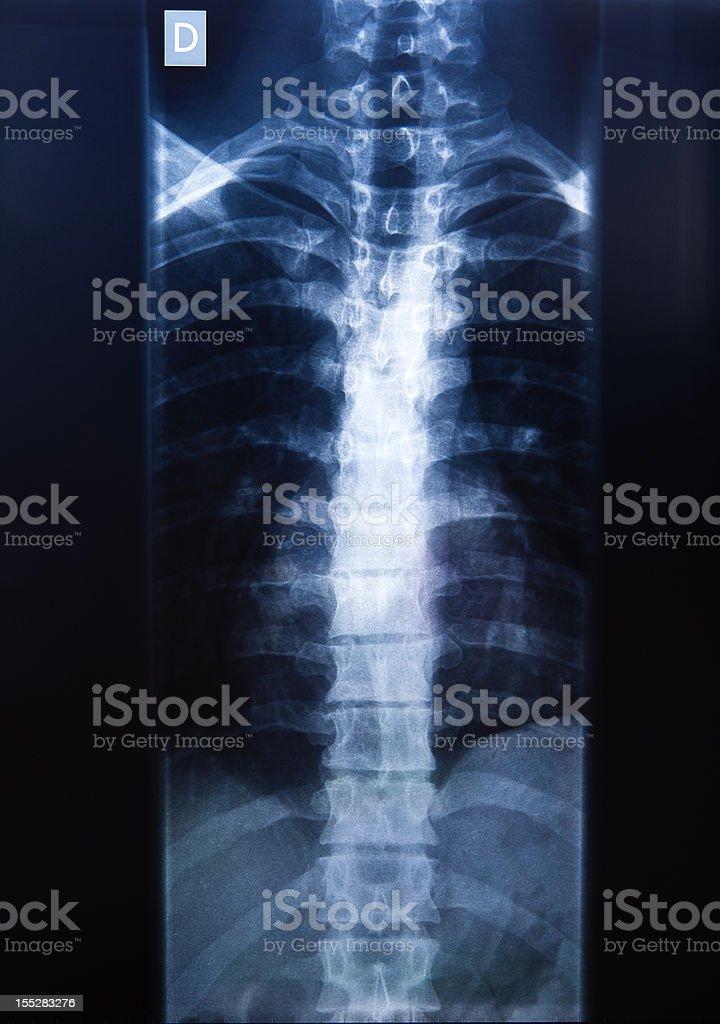 X-ray of a vertebral column royalty-free stock photo