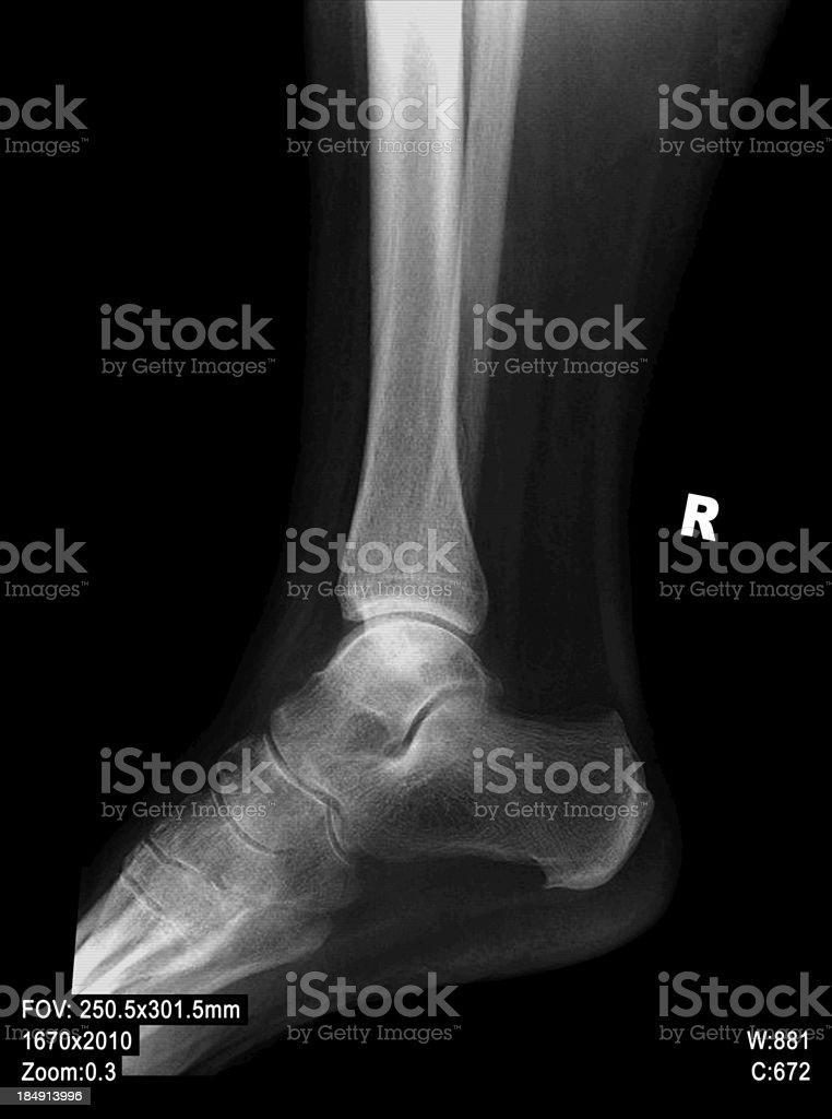 Xray Of Ankle Stock Photo Istock